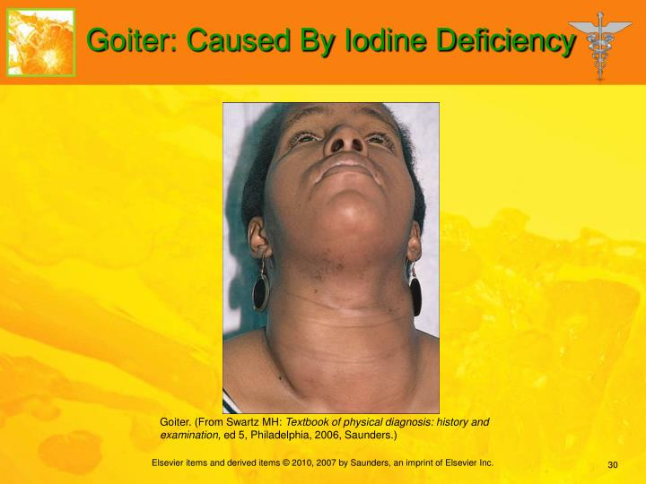 Goiter: Caused By Iodine Deficiency