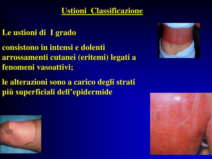 Ustioni  Classificazione
