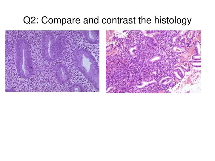Q2: Compare and contrast the histology