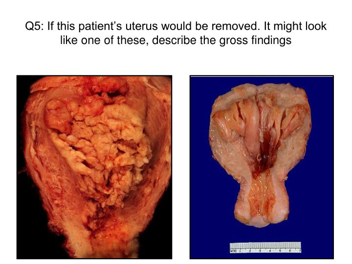 Q5: If this patient's uterus would be removed. It might look like one of these, describe the gross findings