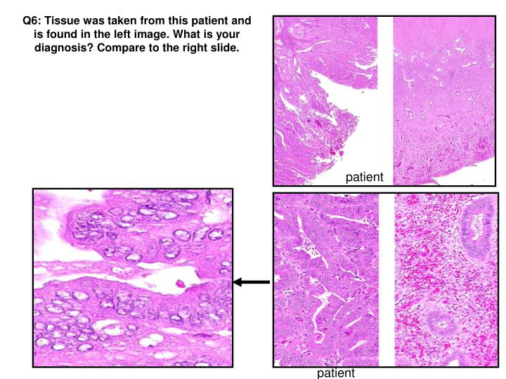 Q6: Tissue was taken from this patient and is found in the left image. What is your diagnosis? Compare to the right slide.