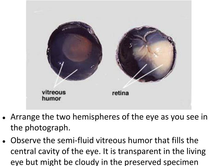 Arrange the two hemispheres of the eye as you see in the photograph.