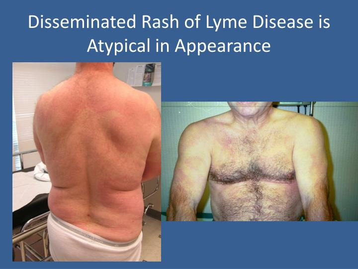 Disseminated Rash of Lyme Disease is Atypical in Appearance