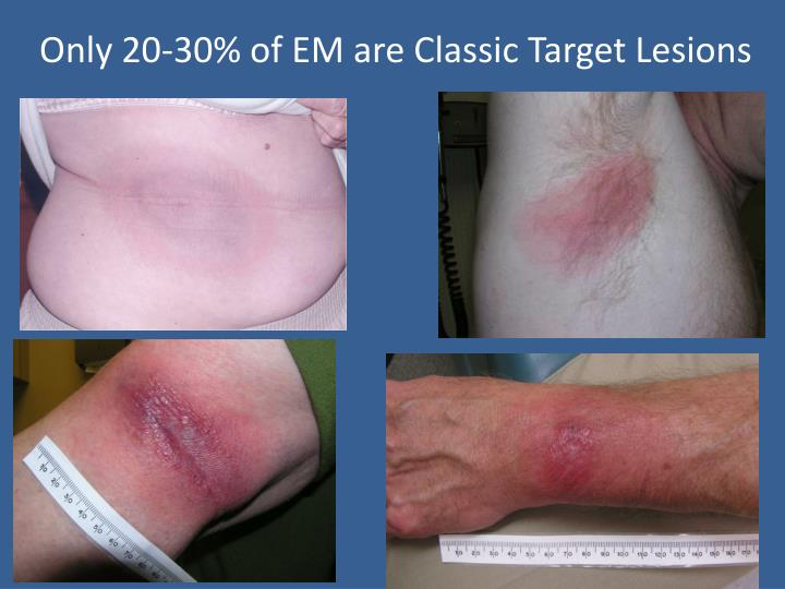 Only 20-30% of EM are Classic Target Lesions
