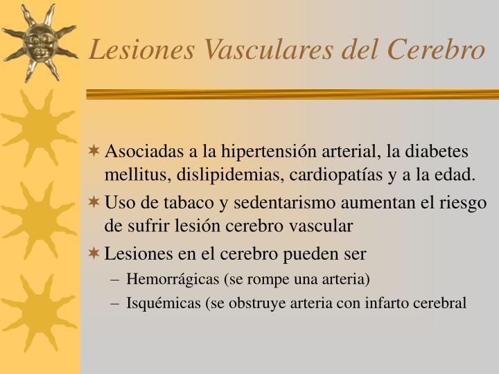 Lesiones Vasculares del Cerebro