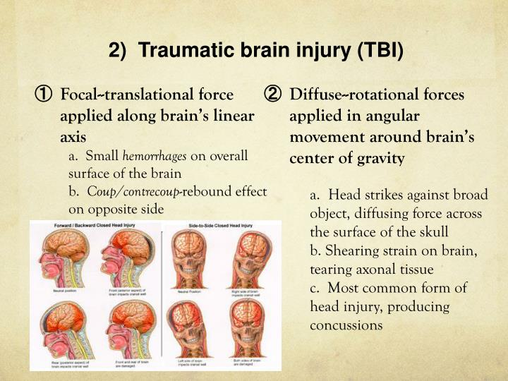 2)  Traumatic brain injury (TBI)