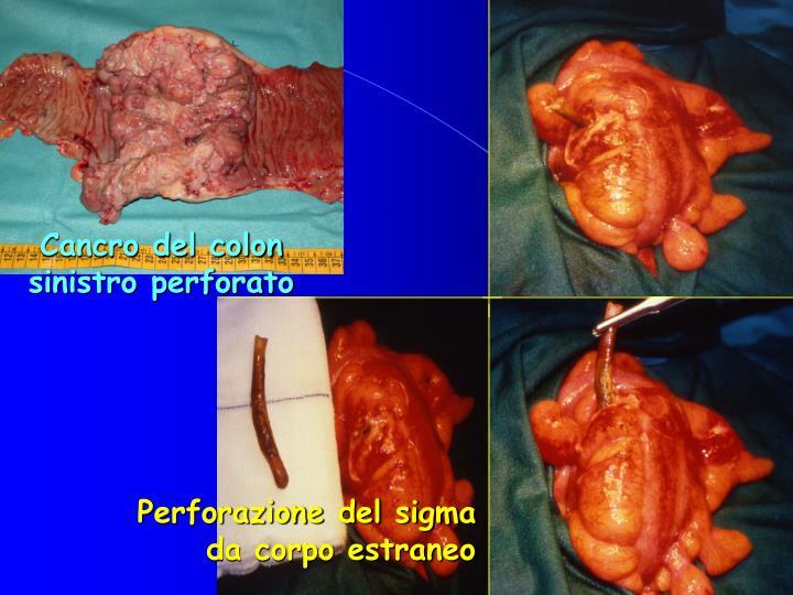 Cancro del colon sinistro perforato