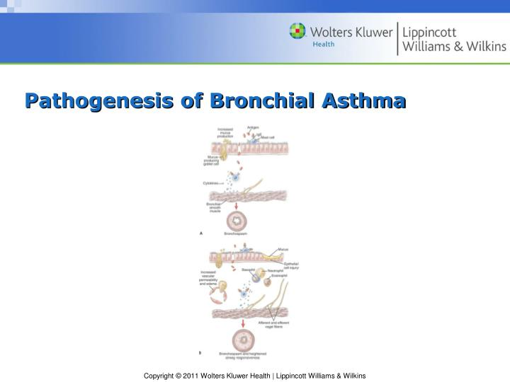 Pathogenesis of Bronchial Asthma