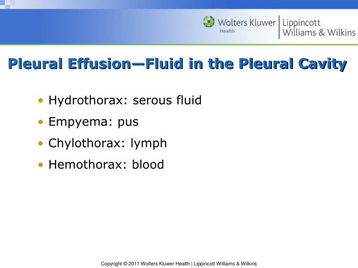 Pleural Effusion—Fluid in the Pleural Cavity
