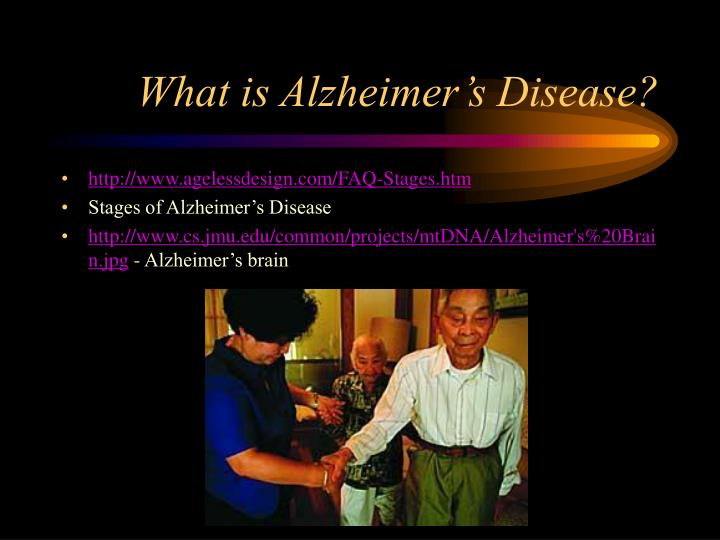 What is alzheimer s disease