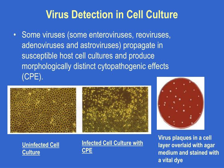 Virus Detection in Cell Culture