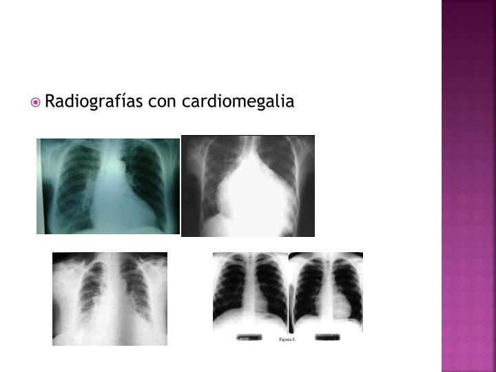 Radiografías con cardiomegalia