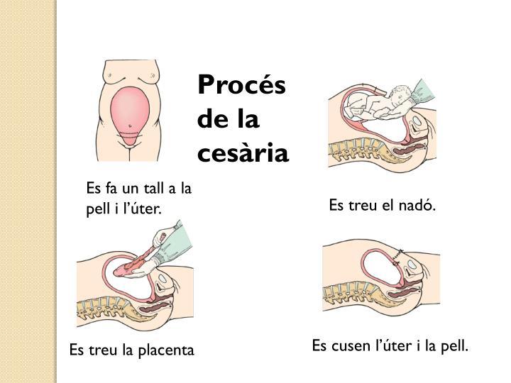 Procés de la cesària