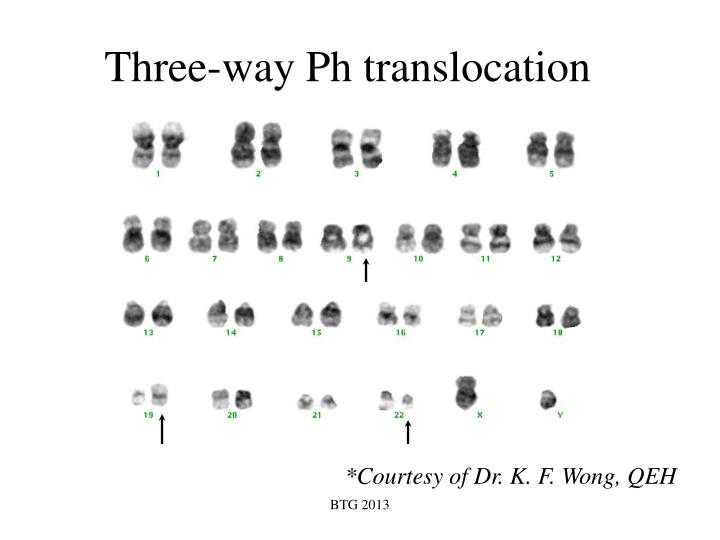 Three-way Ph translocation