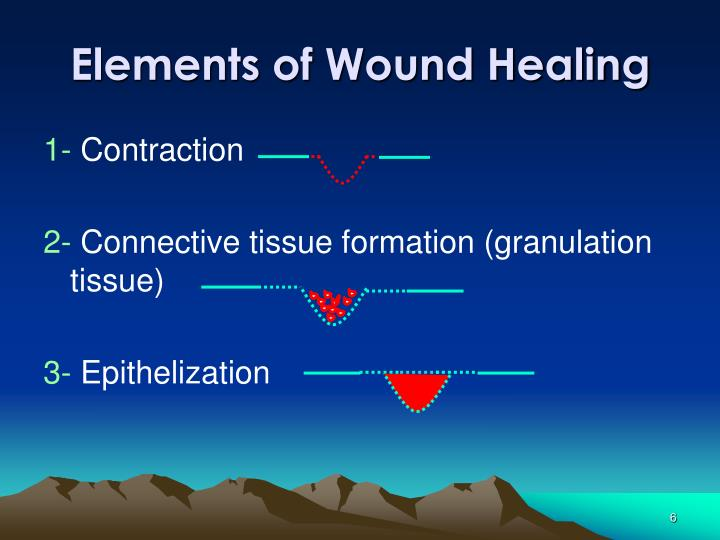 Elements of Wound Healing
