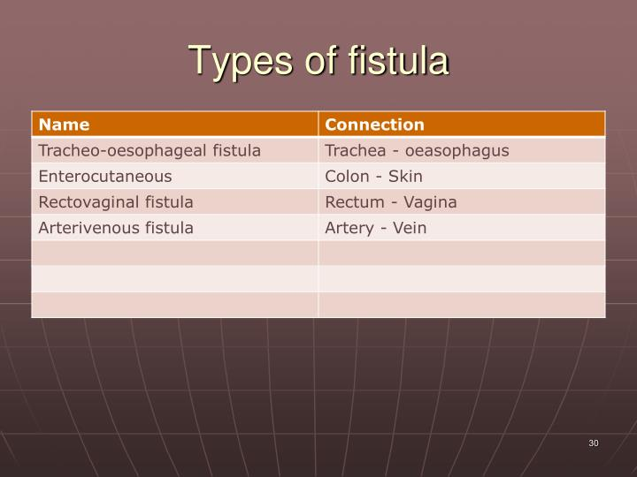 Types of fistula