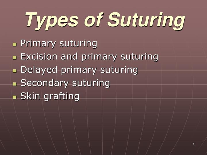 Types of Suturing
