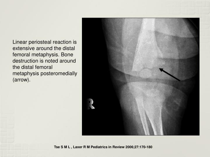 Linear periosteal reaction is extensive around the distal femoral metaphysis. Bone destruction is noted around the distal femoral metaphysis posteromedially (arrow).