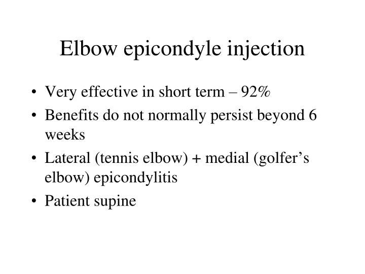 Elbow epicondyle injection