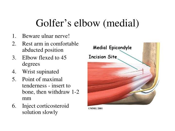 Golfer's elbow (medial)