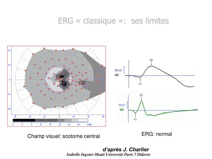 ERG «classique»:  ses limites