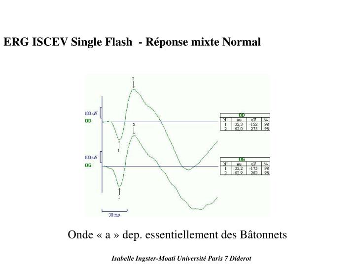 ERG ISCEV Single Flash  - Réponse mixte Normal