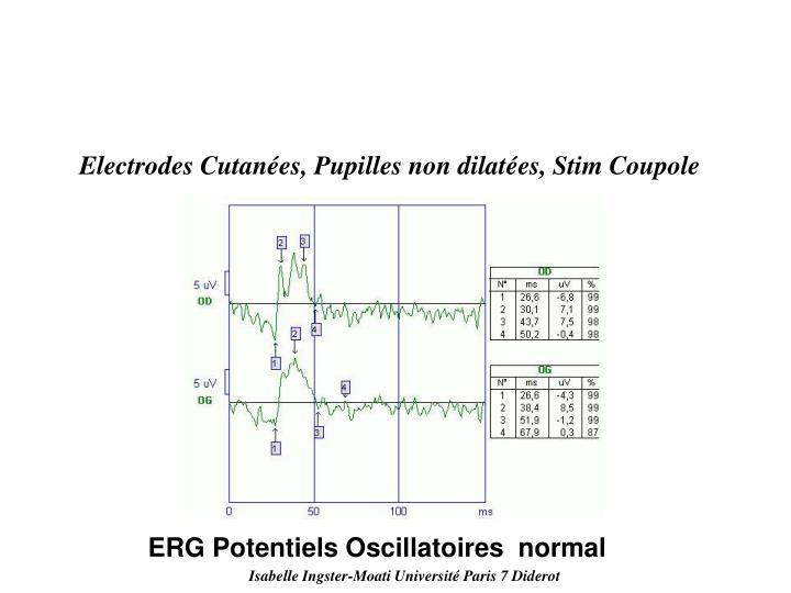 Electrodes Cutanées, Pupilles non dilatées, Stim Coupole