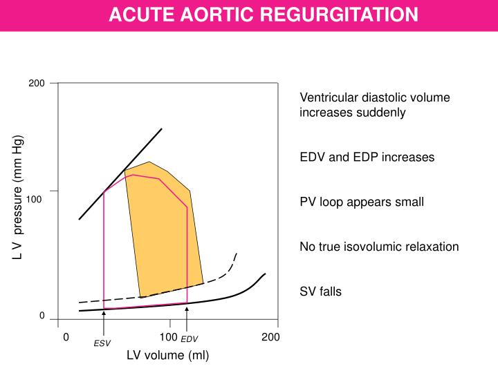 ACUTE AORTIC REGURGITATION
