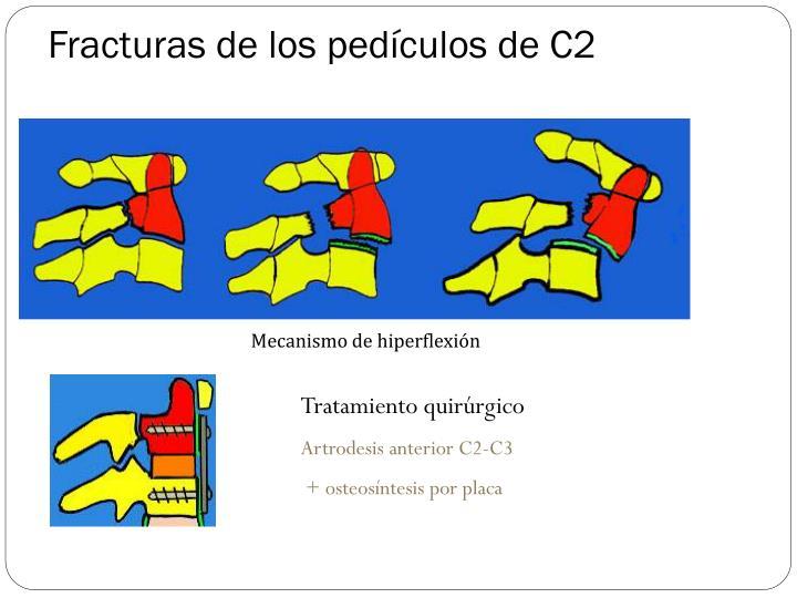 Fracturas de los pedículos de C2