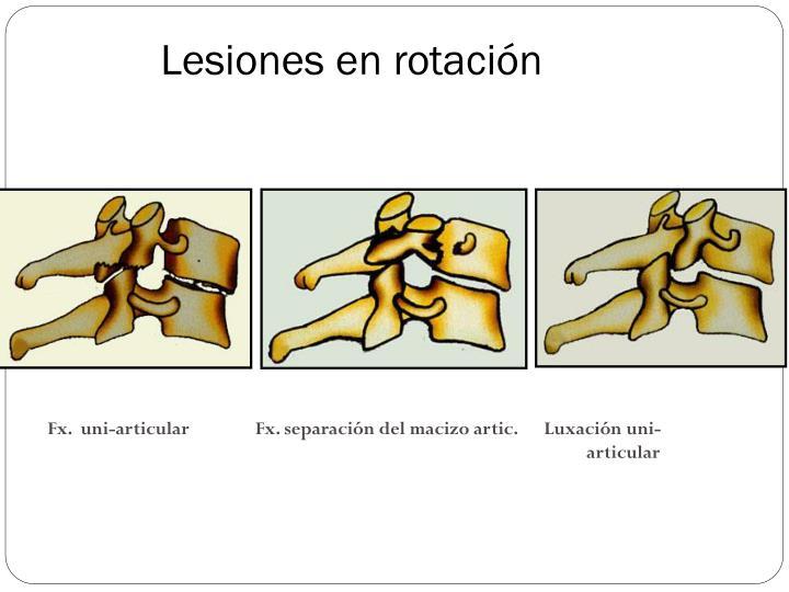 Lesiones en rotación