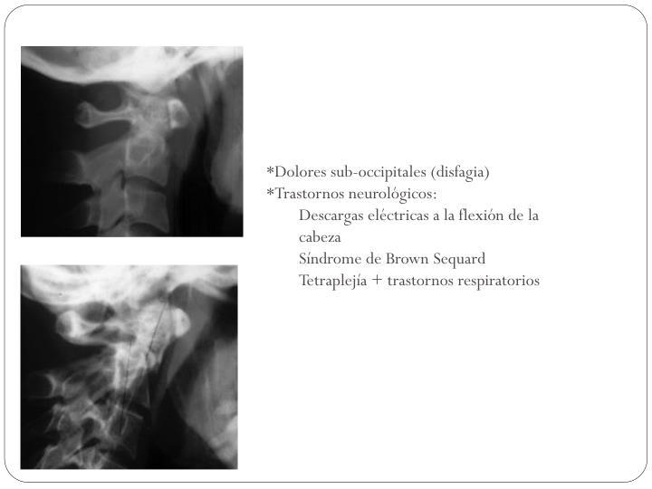 *Dolores sub-occipitales (disfagia)