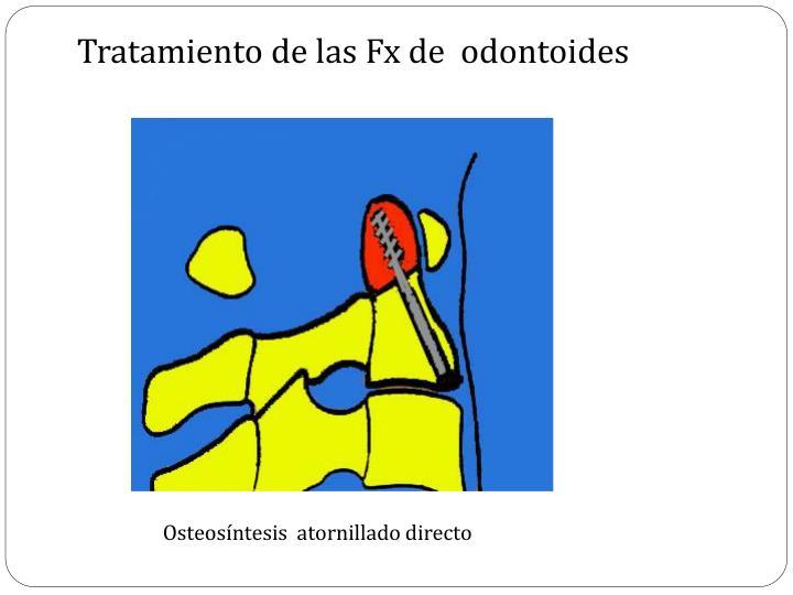 Tratamiento de las Fx de  odontoides