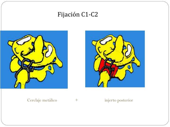 Fijación C1-C2