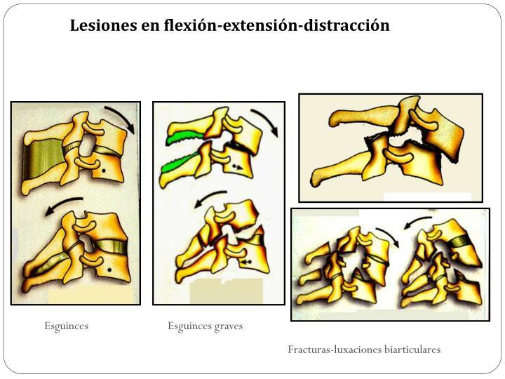Lesiones en flexión-extensión-distracción