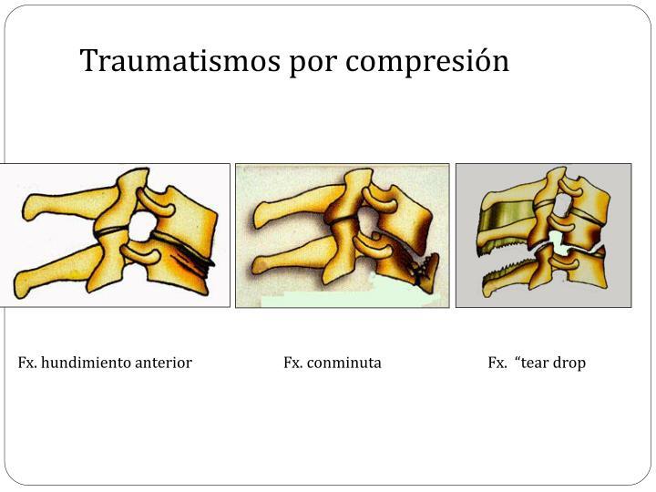Traumatismos por compresión