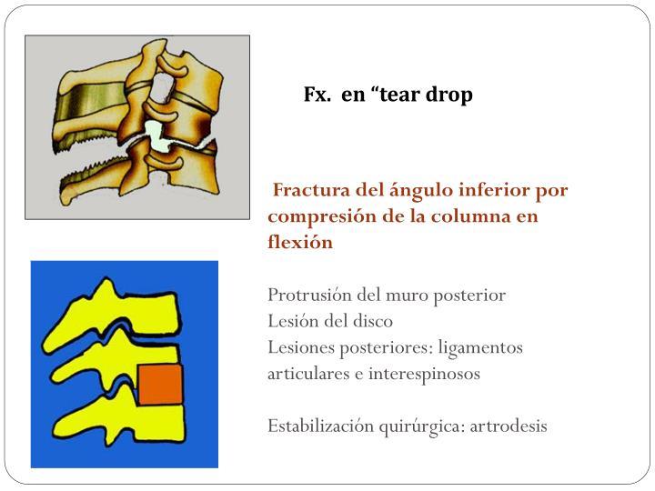 """Fx.  en """"tear drop"""