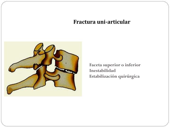Fractura uni-articular