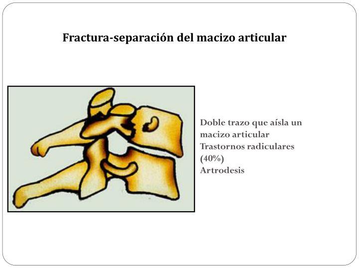 Fractura-separación del macizo articular
