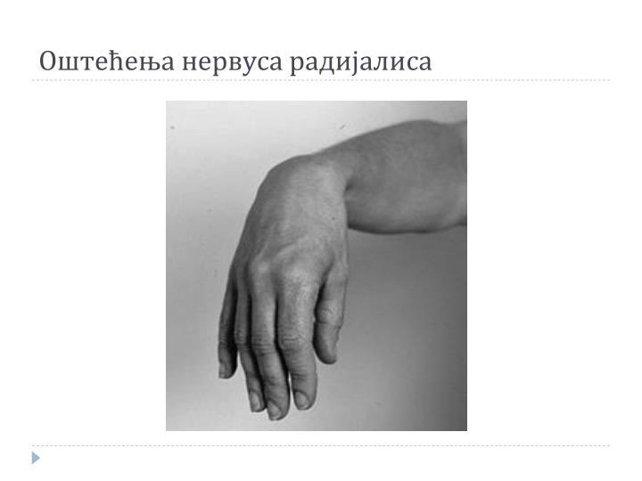 Оштећења нервуса радијалиса
