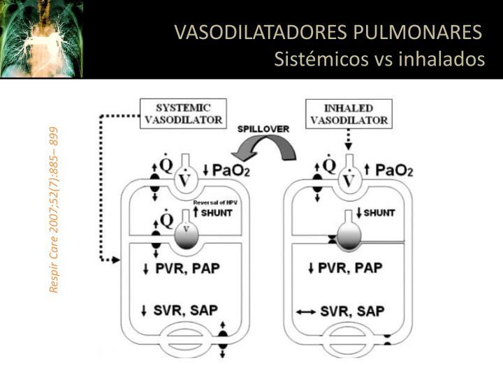 VASODILATADORES PULMONARES