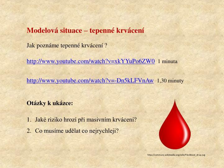 Modelová situace – tepenné krvácení