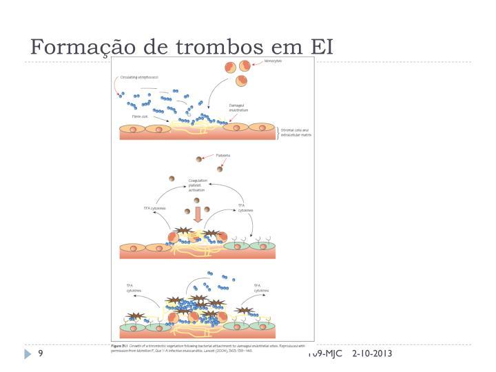 Formação de trombos em EI