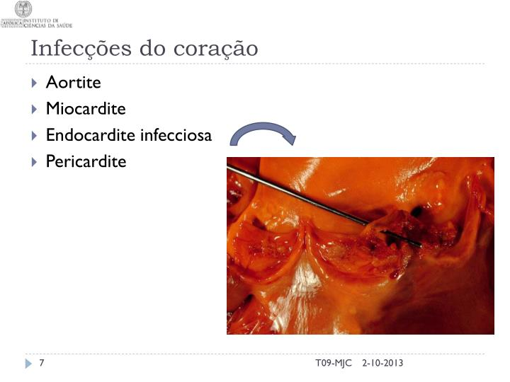 Infecções do coração