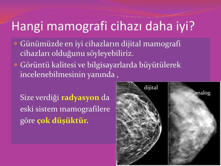 Hangi mamografi cihaz daha iyi?
