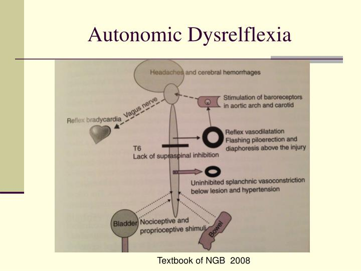 Autonomic Dysrelflexia