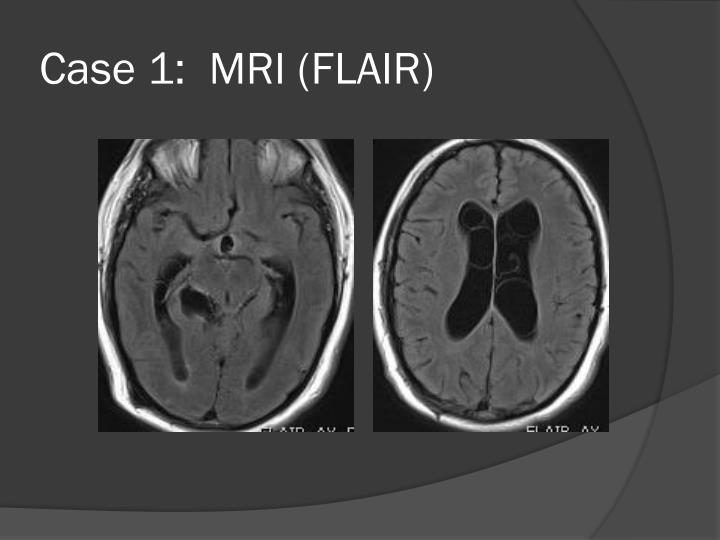 Case 1:  MRI (FLAIR)