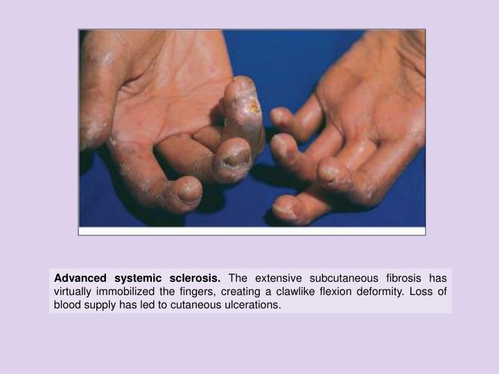Advanced systemic sclerosis.