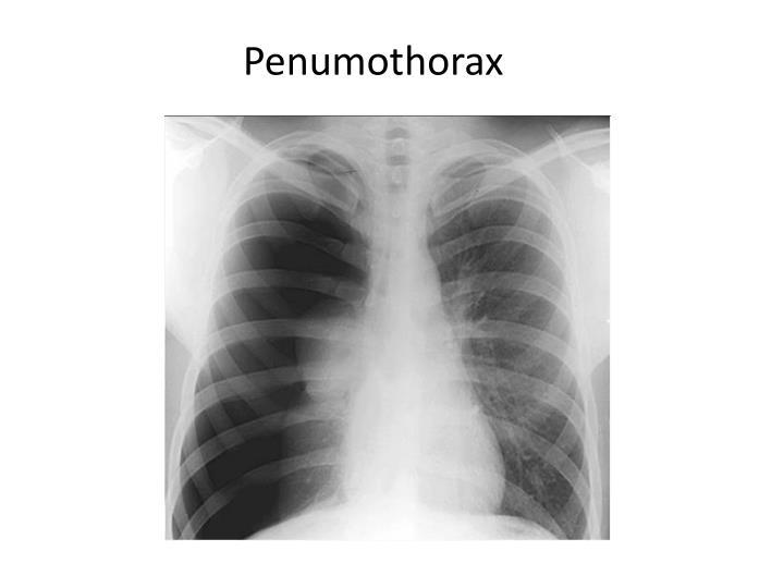 Penumothorax