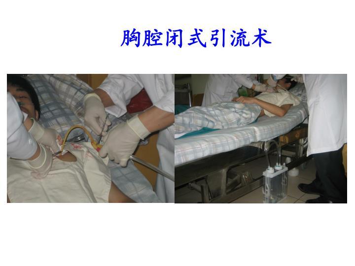 胸腔闭式引流术