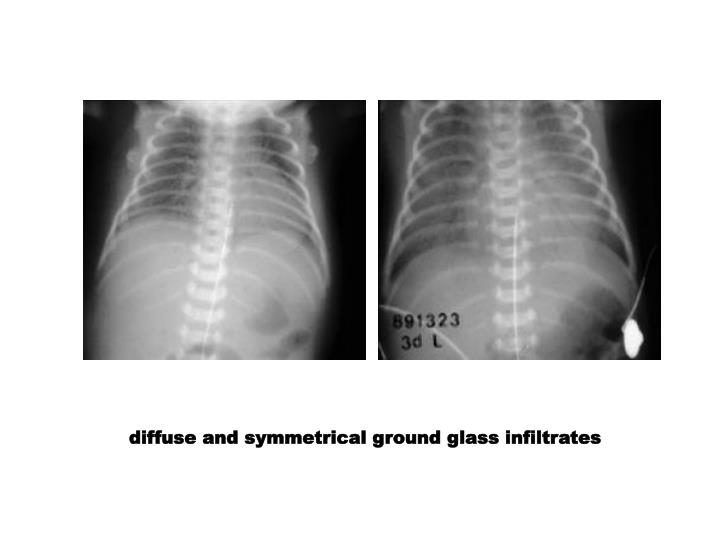 diffuse and symmetrical ground glass infiltrates
